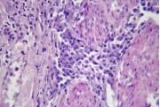 Carcinoma of urinary bladder