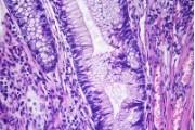 Villous adenoma