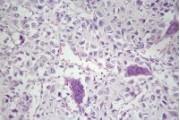 Osteogenic sarcoma