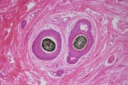 Skin of human showing hair follicle, internal root sheath can be seen clearly