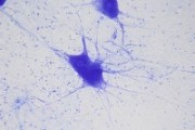 Neurocyte, showing dendrites and glia cells