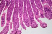 Small intestine of cat showing cylindrical vili