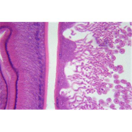 Ascaris lumbricoides, female and male t.s. slide