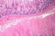 Human rectum, c.s.