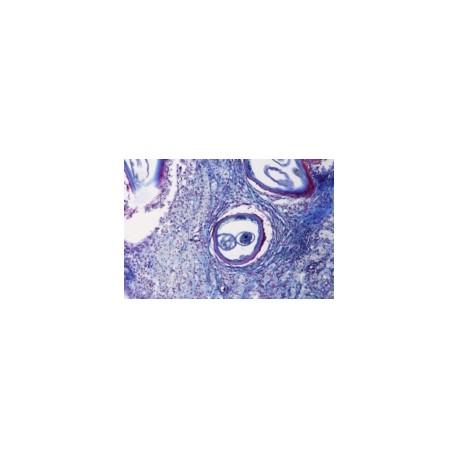 Onchocerca volvulus, sec. through host tissue with tumor containing larvae (filaria)
