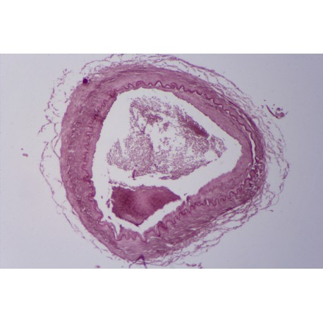 Artery, human, t.s. stained for elastic fibres
