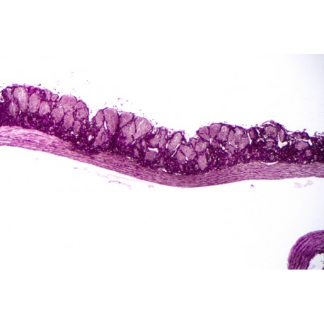 Vein, human, t.s. stained for elastic fibres