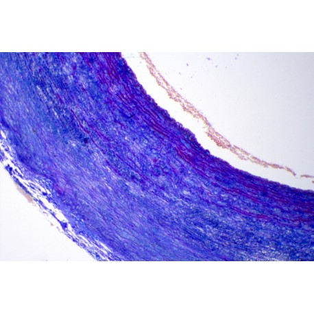Aorta, human, t.s. routine stained