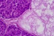 Pancreas, human t.s.