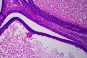 Ovary, mature (active phase), human t.s.