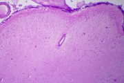 Cerebrum and cerebellum composite slide, human, t.s. routine stained