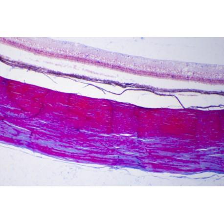 Retina from eye, human t.s. *