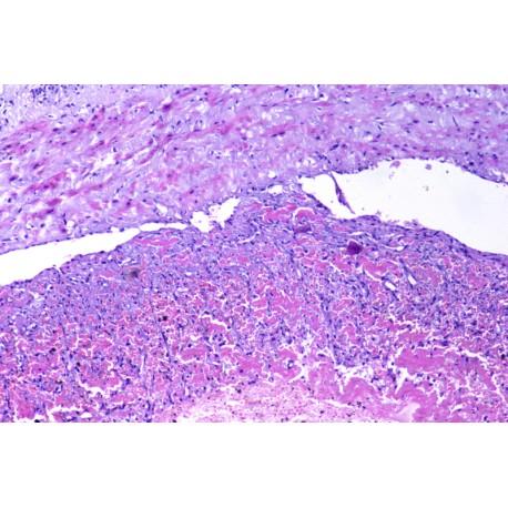 Mixed thrombus,sec
