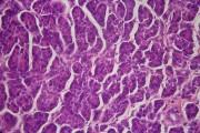 Pancreatic cancer,sec