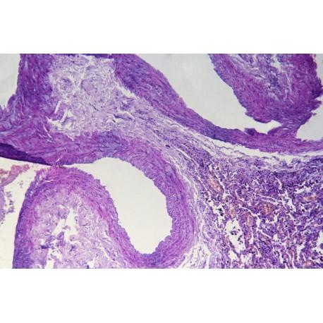 Human bronchiectasis sec.
