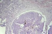 Basal cell carcinoma sec.