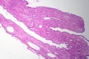 Mucinous adenocarcinoma, sec