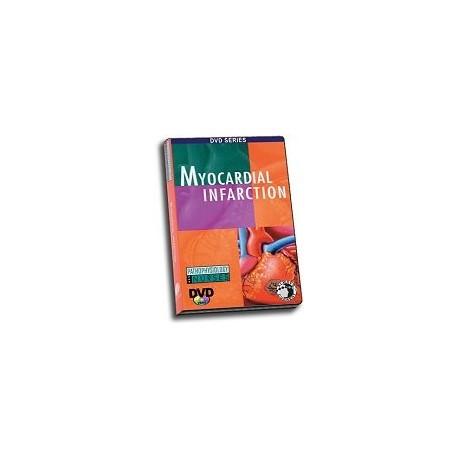 Pathophysiology: Myocardial Infarction DVD