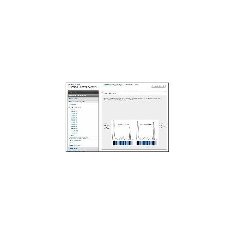 Protein Electrophoresis Tutor
