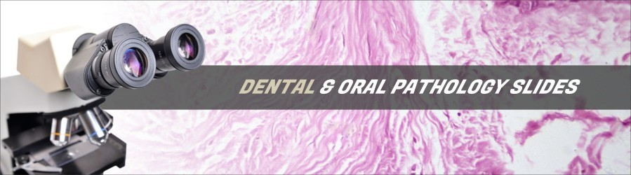 Oral Diseases Slides