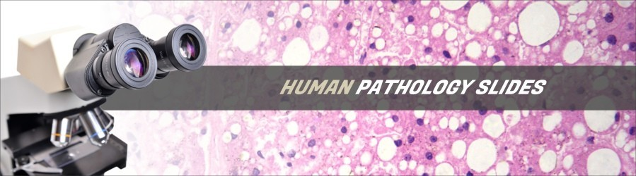 Human Pathology Slides