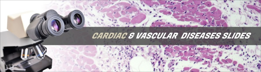 Cardiac & Vascular Diseases Slides