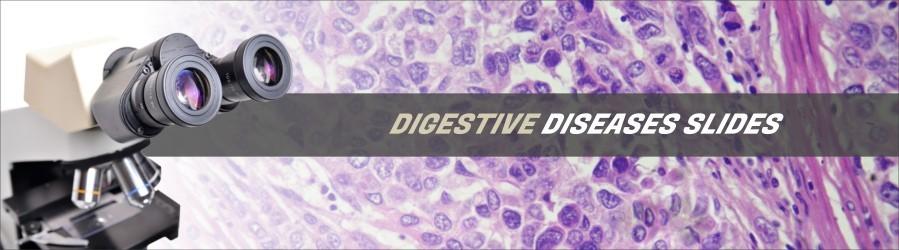 Digestive Diseases Slides