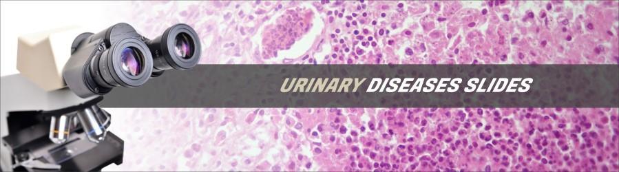 Excretory Diseases Slides