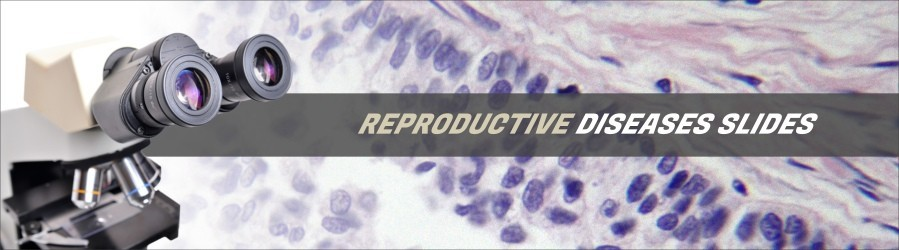 Reproductive Diseases Slides
