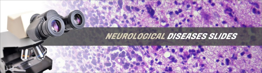 Neurological Diseases Slides